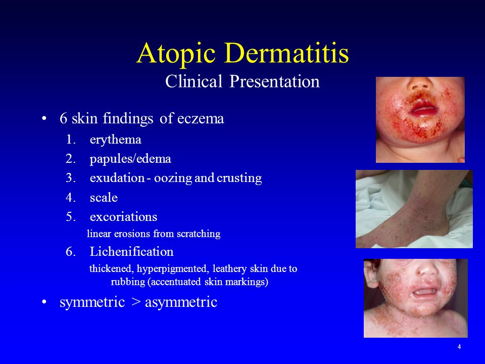 Atopic Dermatitis Clinical Presentation 6 skin findings of eczema 1.erythema 2.papules/edema 3.exudation - oozing and crusting 4.scale 5.excoriations