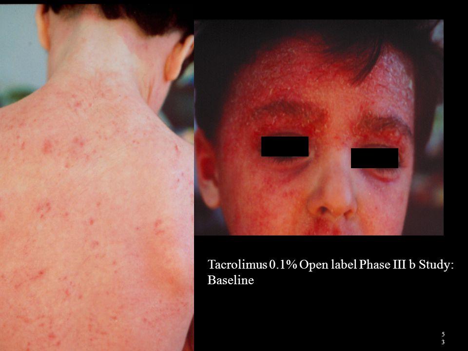 Tacrolimus 0.1% Open label Phase III b Study: Baseline 5353