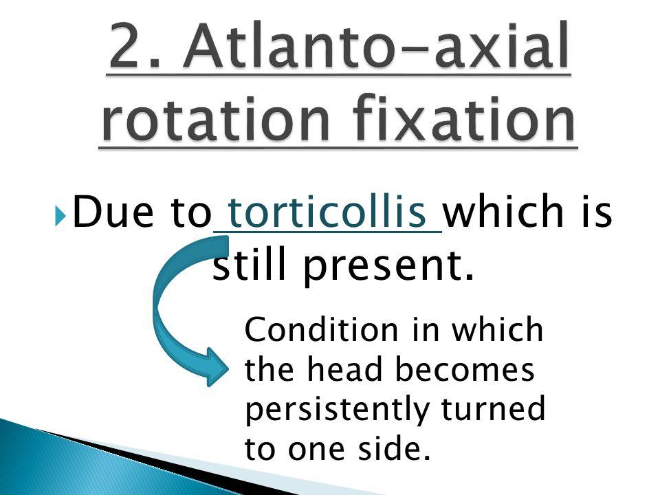  Due to torticollis which is still present.