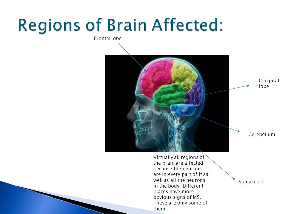 Virtually all regions of the brain are affected because the neurons are in every part of it as well as all the neurons in the body. Different places h