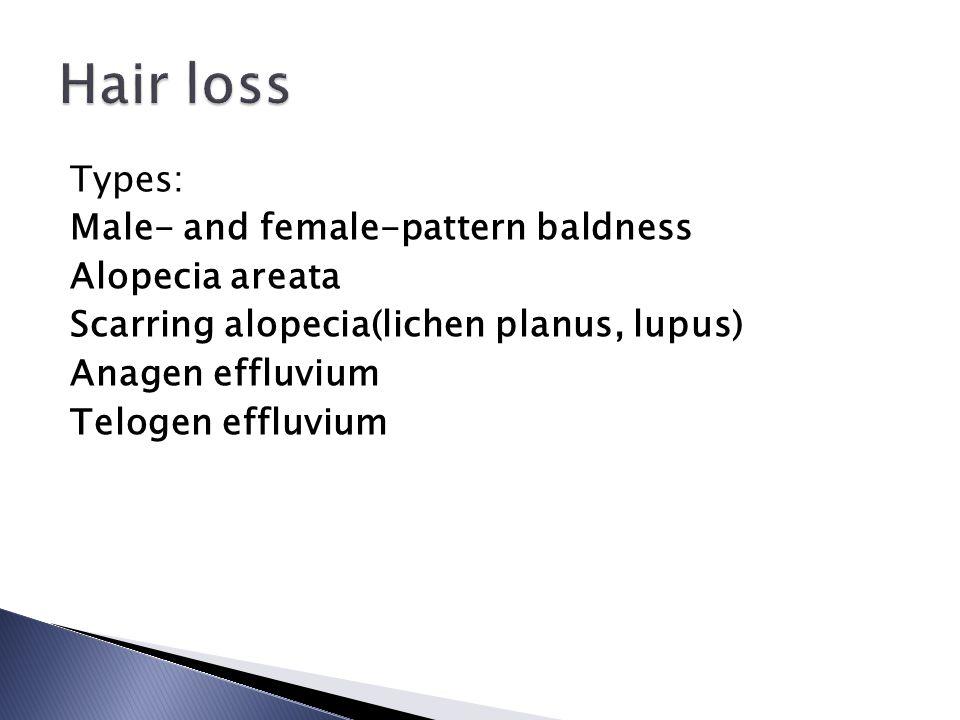 Types: Male- and female-pattern baldness Alopecia areata Scarring alopecia(lichen planus, lupus) Anagen effluvium Telogen effluvium