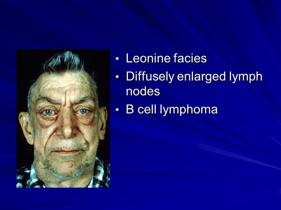 Leonine facies Leonine facies Diffusely enlarged lymph nodes Diffusely enlarged lymph nodes B cell lymphoma B cell lymphoma