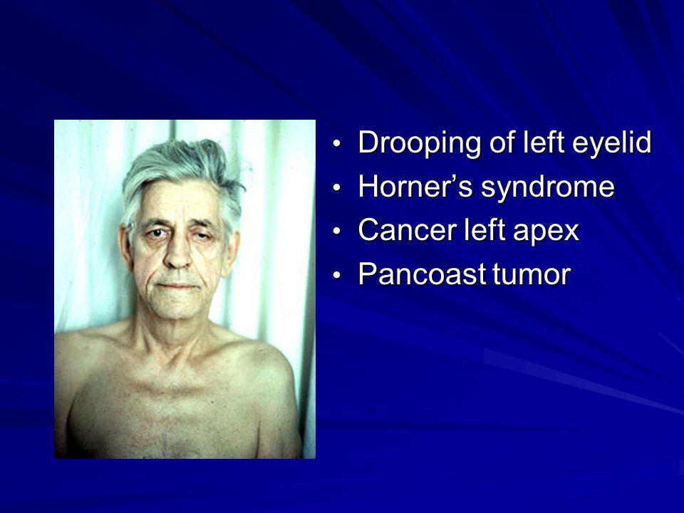 Drooping of left eyelid Drooping of left eyelid Horner's syndrome Horner's syndrome Cancer left apex Cancer left apex Pancoast tumor Pancoast tumor