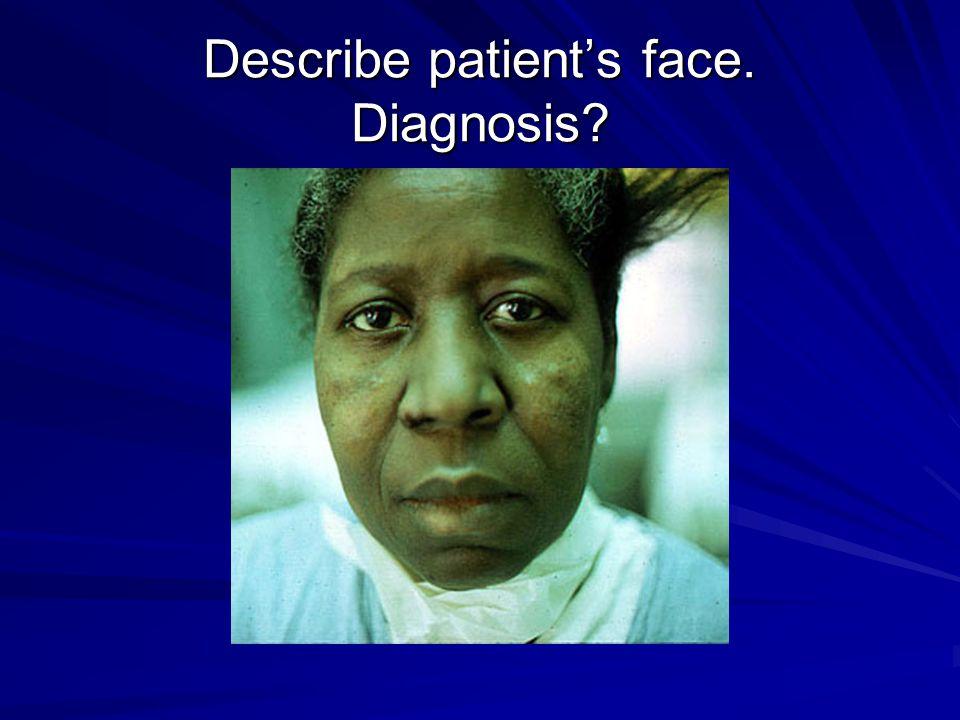 Describe patient's face. Diagnosis?