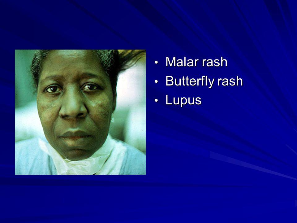 Malar rash Malar rash Butterfly rash Butterfly rash Lupus Lupus