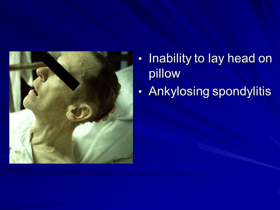 Inability to lay head on pillow Inability to lay head on pillow Ankylosing spondylitis Ankylosing spondylitis