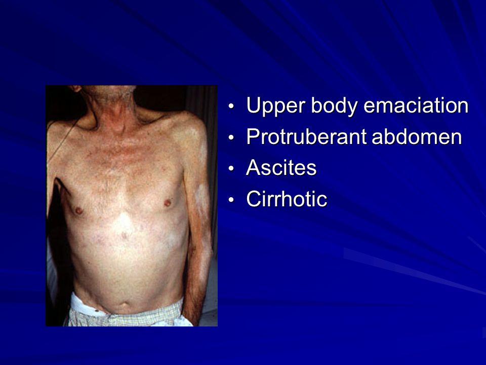 Upper body emaciation Upper body emaciation Protruberant abdomen Protruberant abdomen Ascites Ascites Cirrhotic Cirrhotic