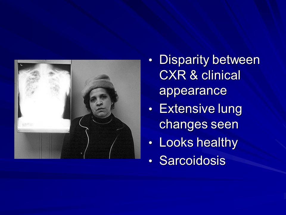 Disparity between CXR & clinical appearance Disparity between CXR & clinical appearance Extensive lung changes seen Extensive lung changes seen Looks