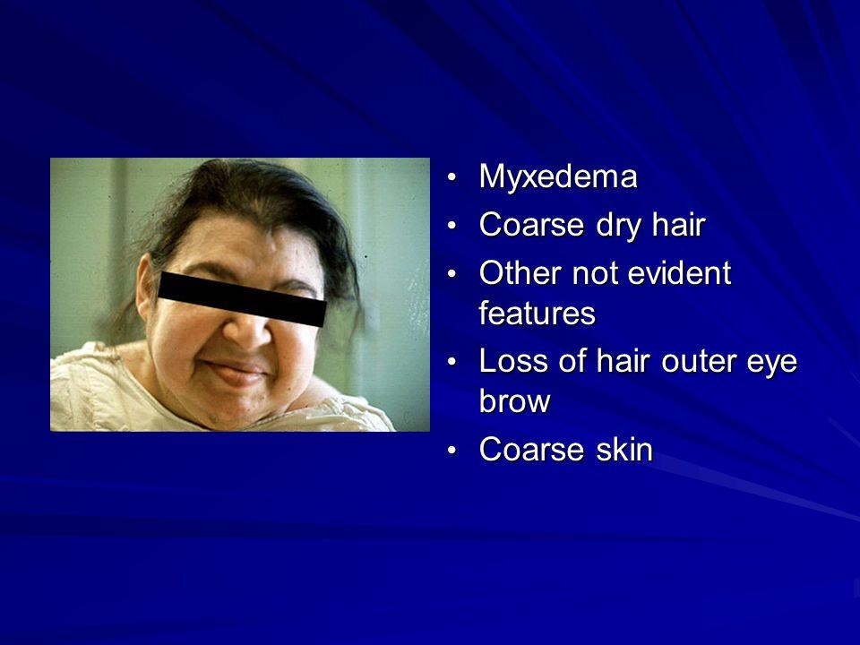 Myxedema Myxedema Coarse dry hair Coarse dry hair Other not evident features Other not evident features Loss of hair outer eye brow Loss of hair outer