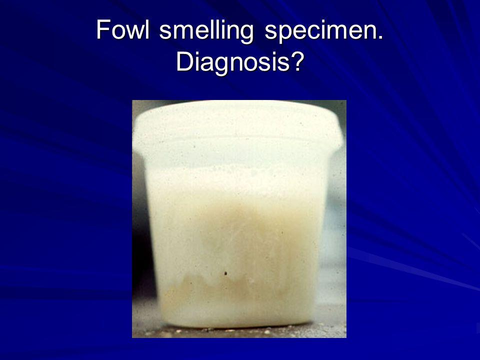 Fowl smelling specimen. Diagnosis?