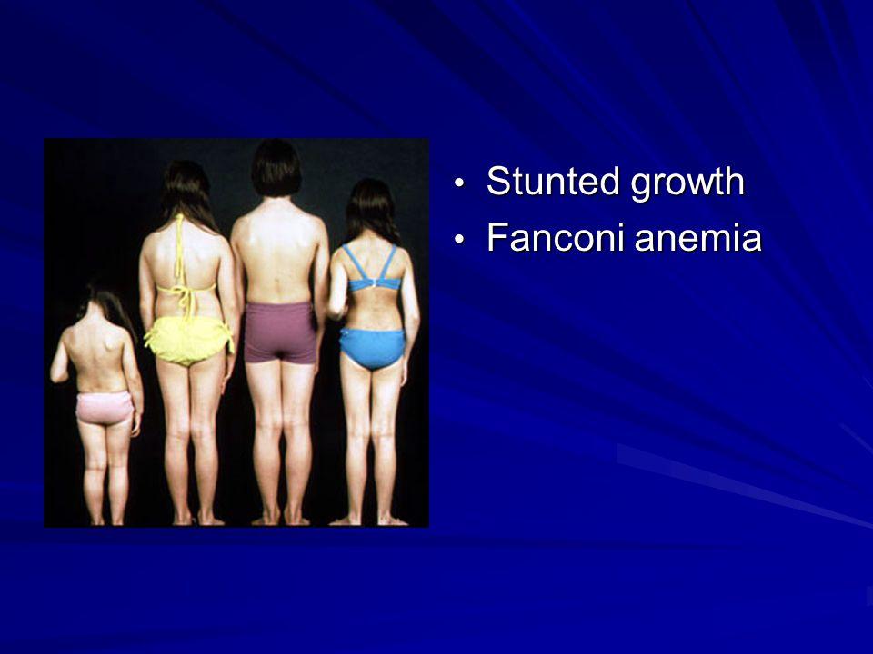 Stunted growth Stunted growth Fanconi anemia Fanconi anemia