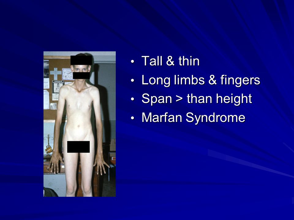 Tall & thin Tall & thin Long limbs & fingers Long limbs & fingers Span > than height Span > than height Marfan Syndrome Marfan Syndrome