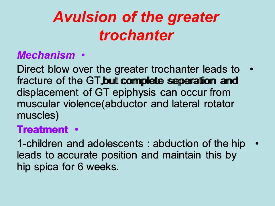 Avulsion of the greater trochanter Mechanism Direct blow over the greater trochanter leads to fracture of the GT,but complete seperation and displacem