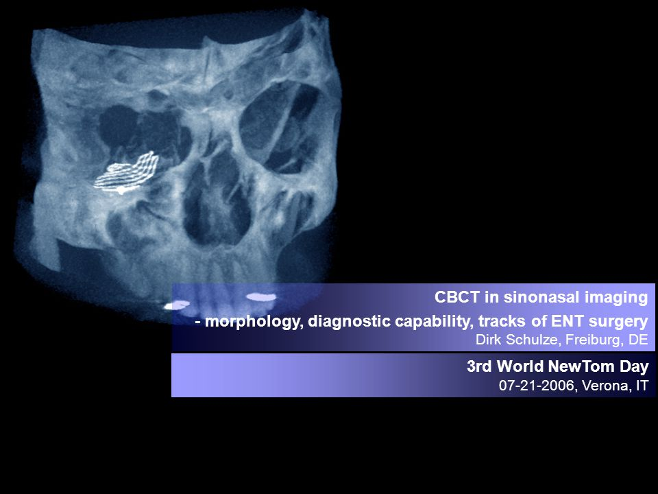CBCT in sinonasal imaging - morphology, diagnostic capability, tracks of ENT surgery Dirk Schulze, Freiburg, DE 3rd World NewTom Day 07-21-2006, Verona, IT