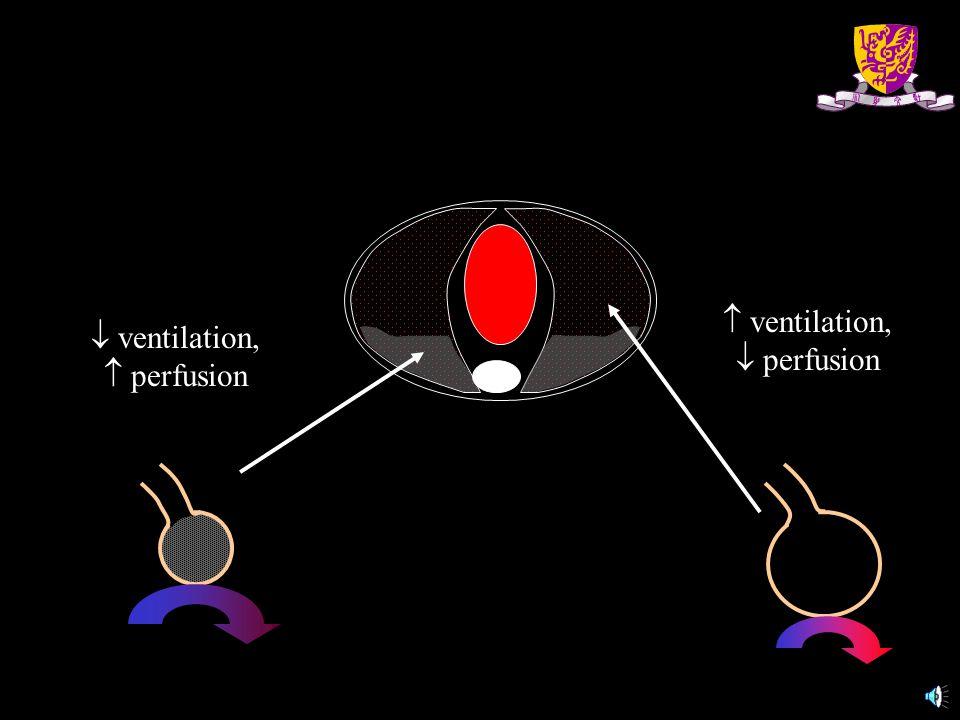  ventilation,  perfusion  ventilation,  perfusion
