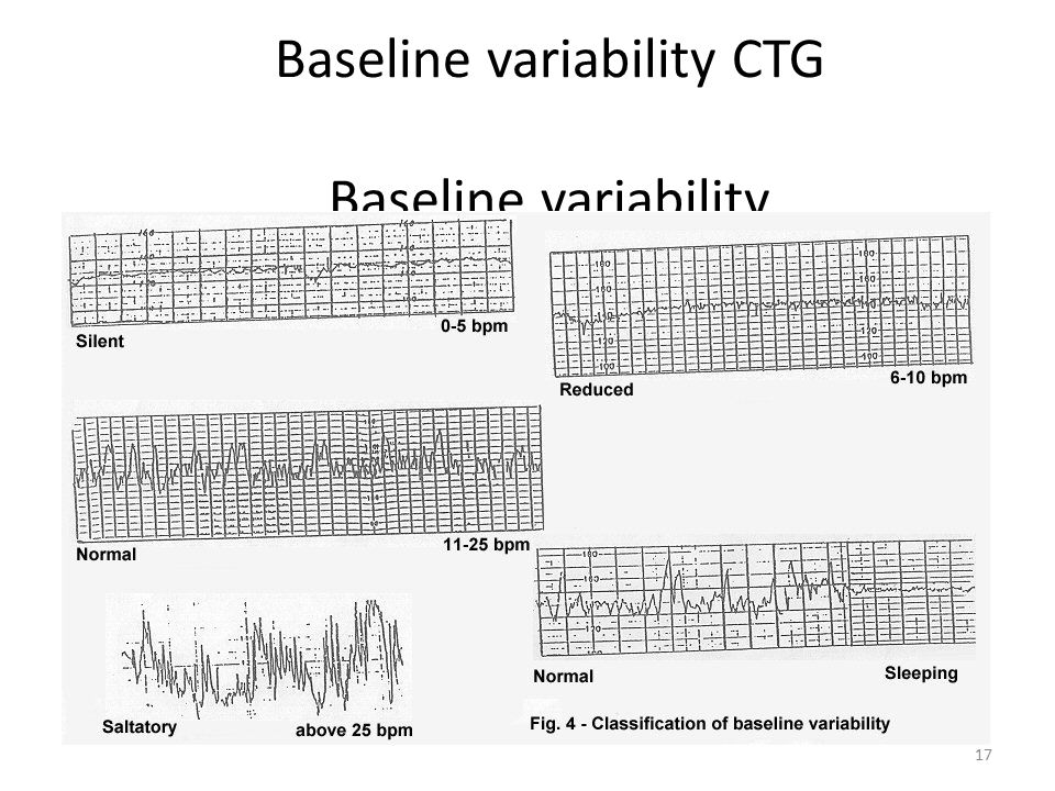Baseline variability CTG Baseline variability 17