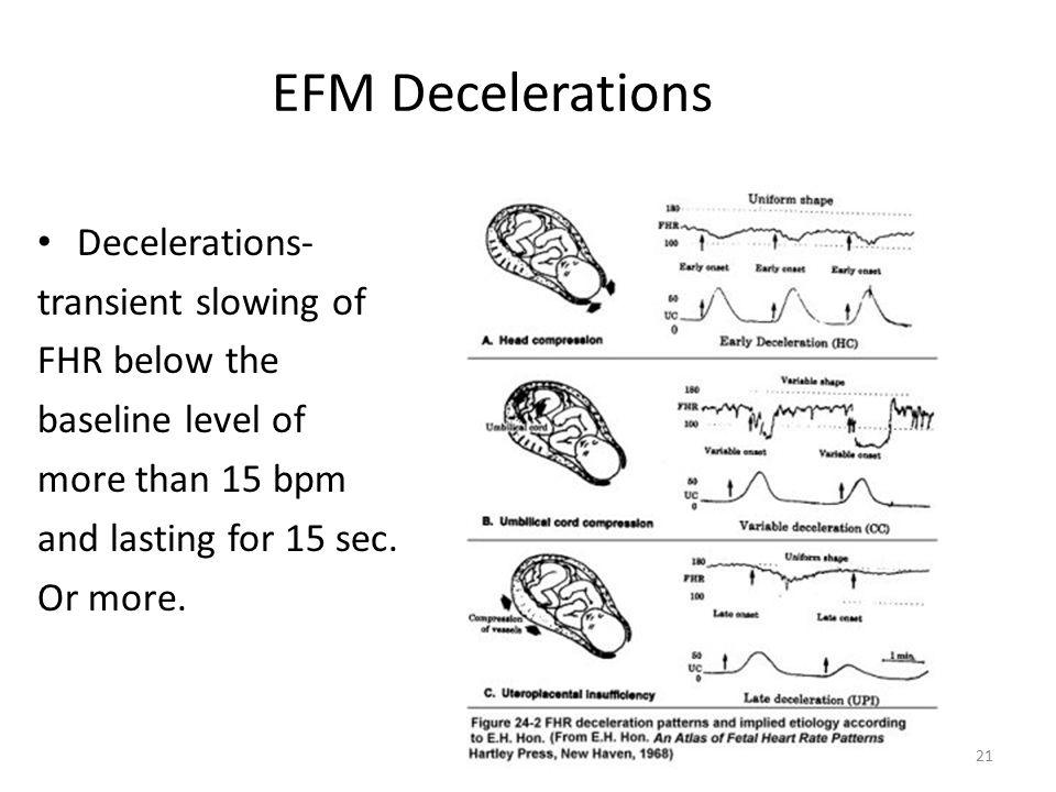EFM Decelerations Decelerations- transient slowing of FHR below the baseline level of more than 15 bpm and lasting for 15 sec. Or more. 21