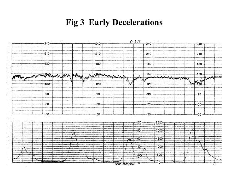 Fig 3Early Decelerations 23