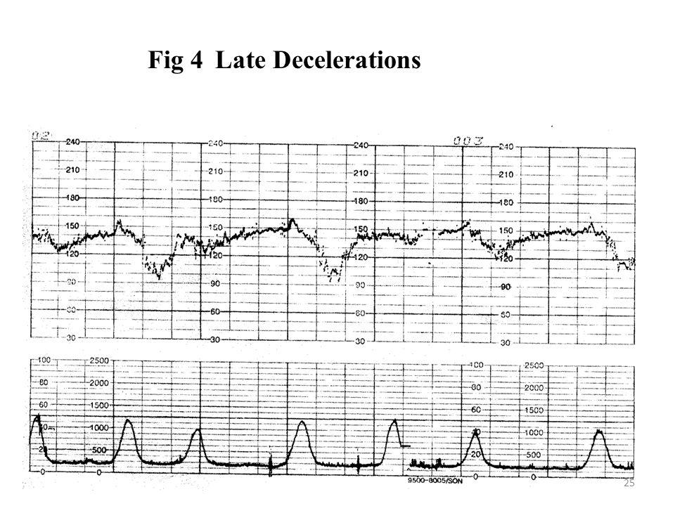 Fig 4 Late Decelerations 25