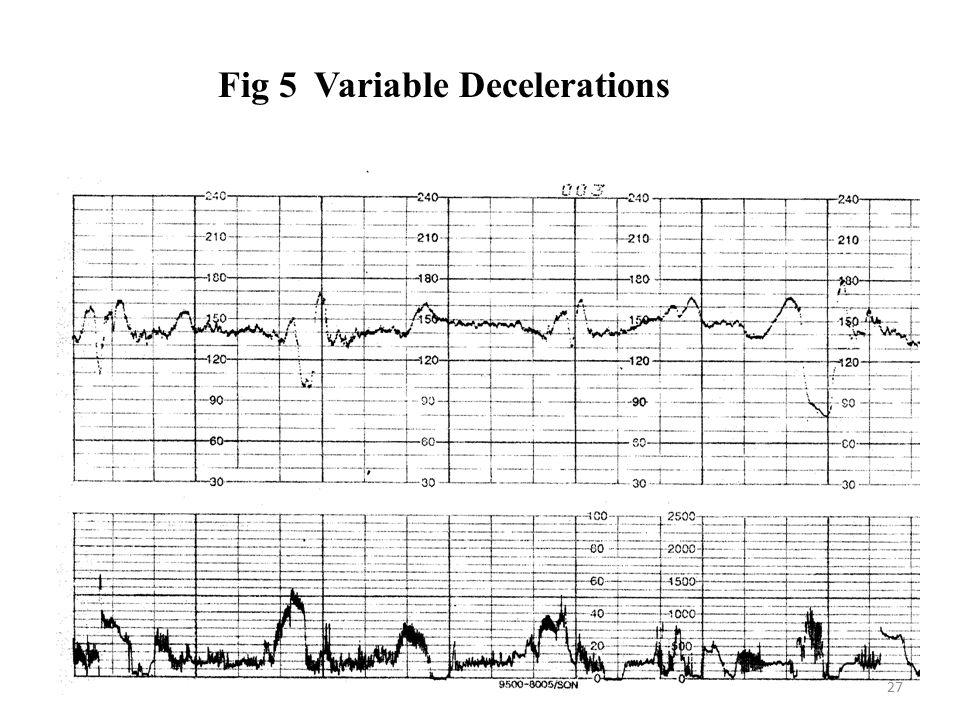 Fig 5Variable Decelerations 27