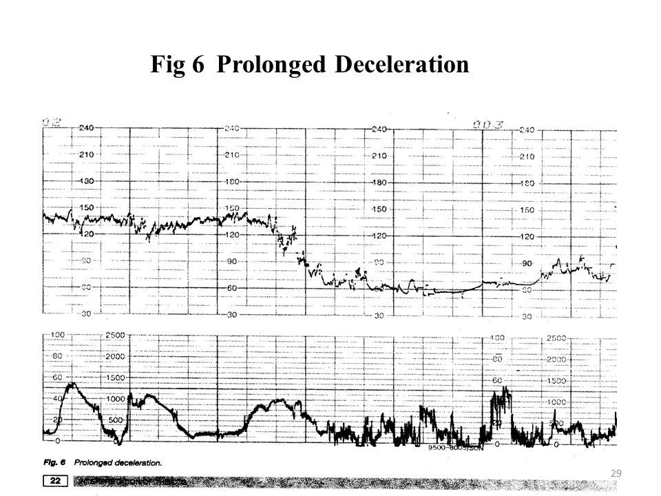 Fig 6 Prolonged Deceleration 29
