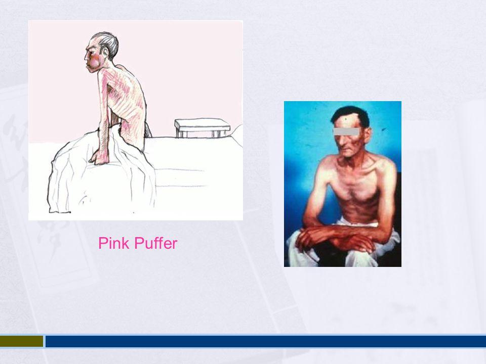Pink Puffer