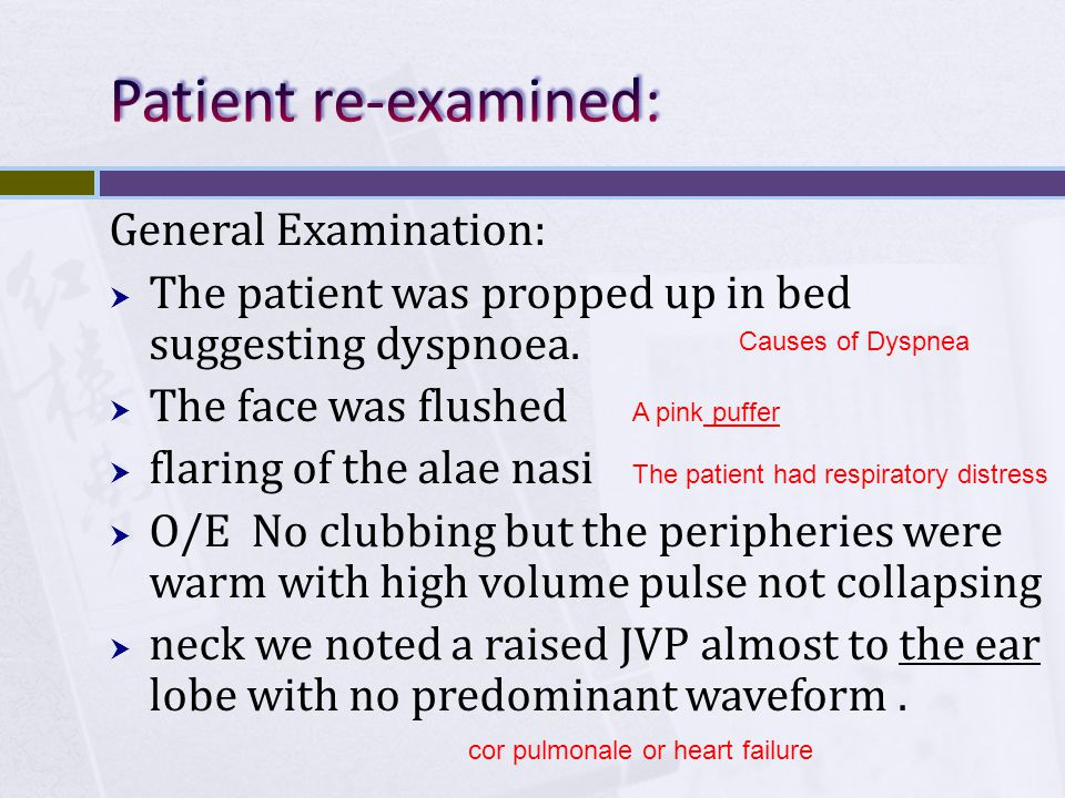 General Examination:  The patient was propped up in bed suggesting dyspnoea.  The face was flushed  flaring of the alae nasi  O/E No clubbing but