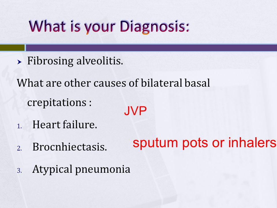  Fibrosing alveolitis. What are other causes of bilateral basal crepitations : 1. Heart failure. 2. Brocnhiectasis. 3. Atypical pneumonia JVP sputum