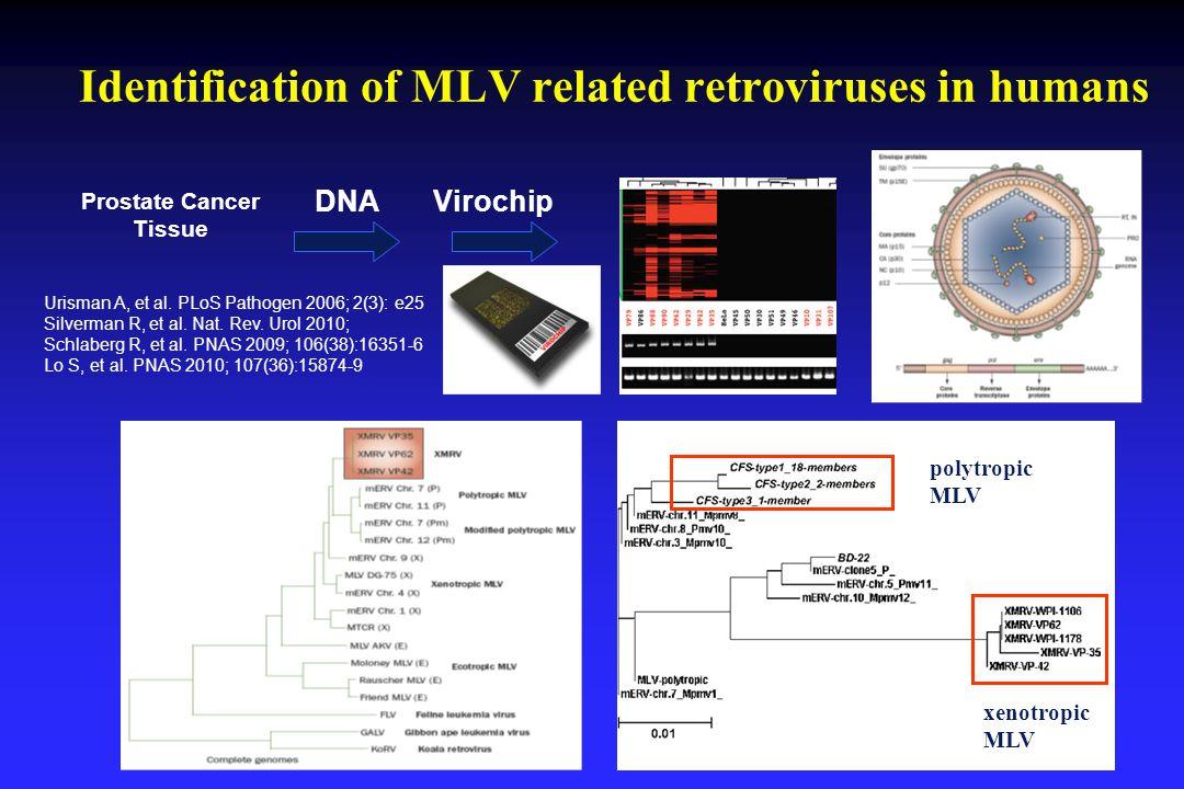 Identification of MLV related retroviruses in humans 3 Prostate Cancer Tissue DNAVirochip Urisman A, et al.