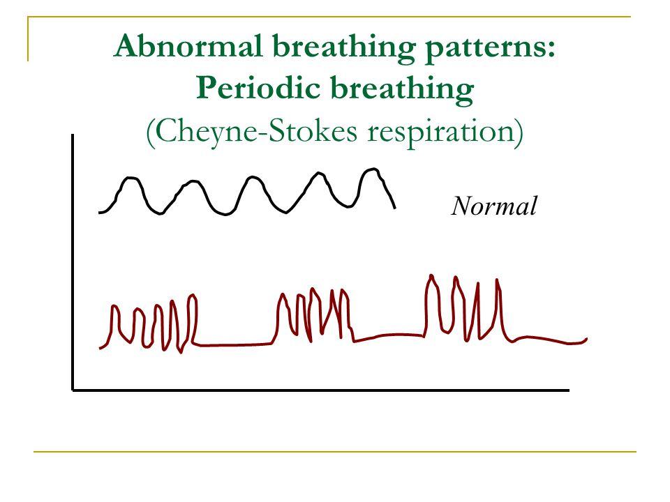Abnormal breathing patterns: Periodic breathing (Cheyne-Stokes respiration) Normal