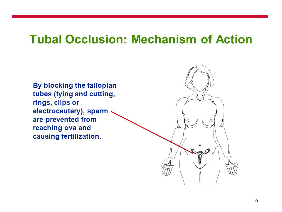 6 Tubal Occlusion: Mechanism of Action By blocking the fallopian tubes (tying and cutting, rings, clips or electrocautery), sperm are prevented from reaching ova and causing fertilization.