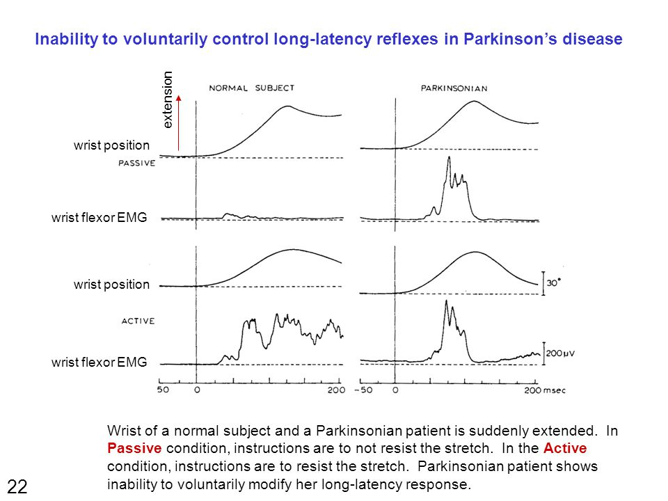 22 Inability to voluntarily control long-latency reflexes in Parkinson's disease Wrist of a normal subject and a Parkinsonian patient is suddenly exte