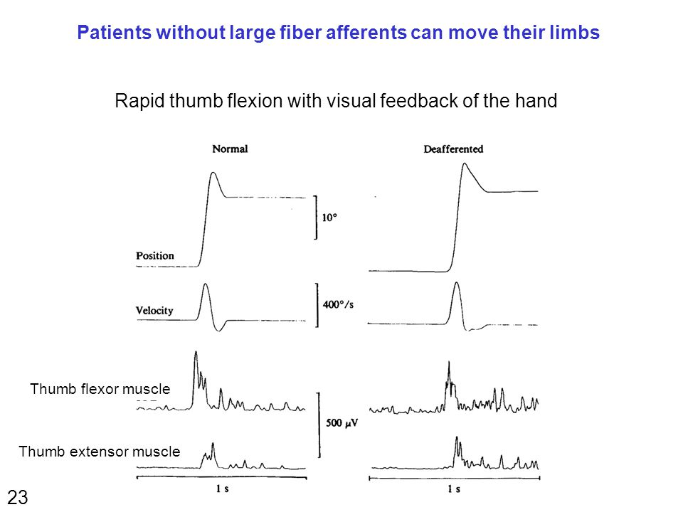 23 Patients without large fiber afferents can move their limbs Rapid thumb flexion with visual feedback of the hand Thumb flexor muscle Thumb extensor