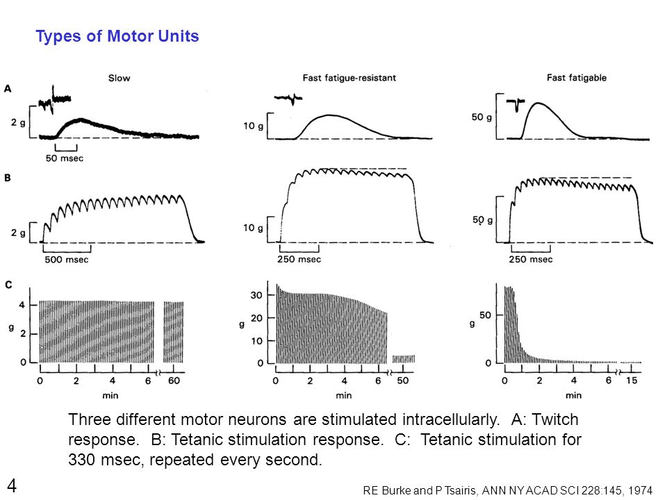 5 Axon Diameter: Tetanic Tension: Speed of Contraction: Fatigue: No.