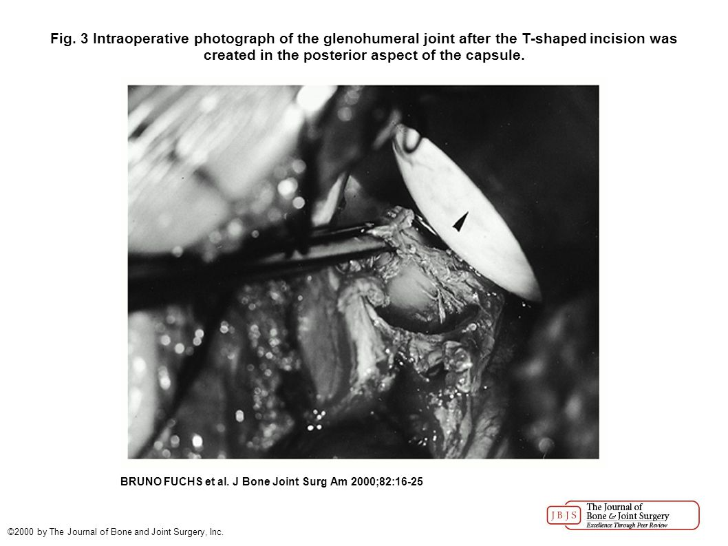 Fig. 3 Intraoperative photograph of the glenohumeral joint after the T-shaped incision was created in the posterior aspect of the capsule. BRUNO FUCHS