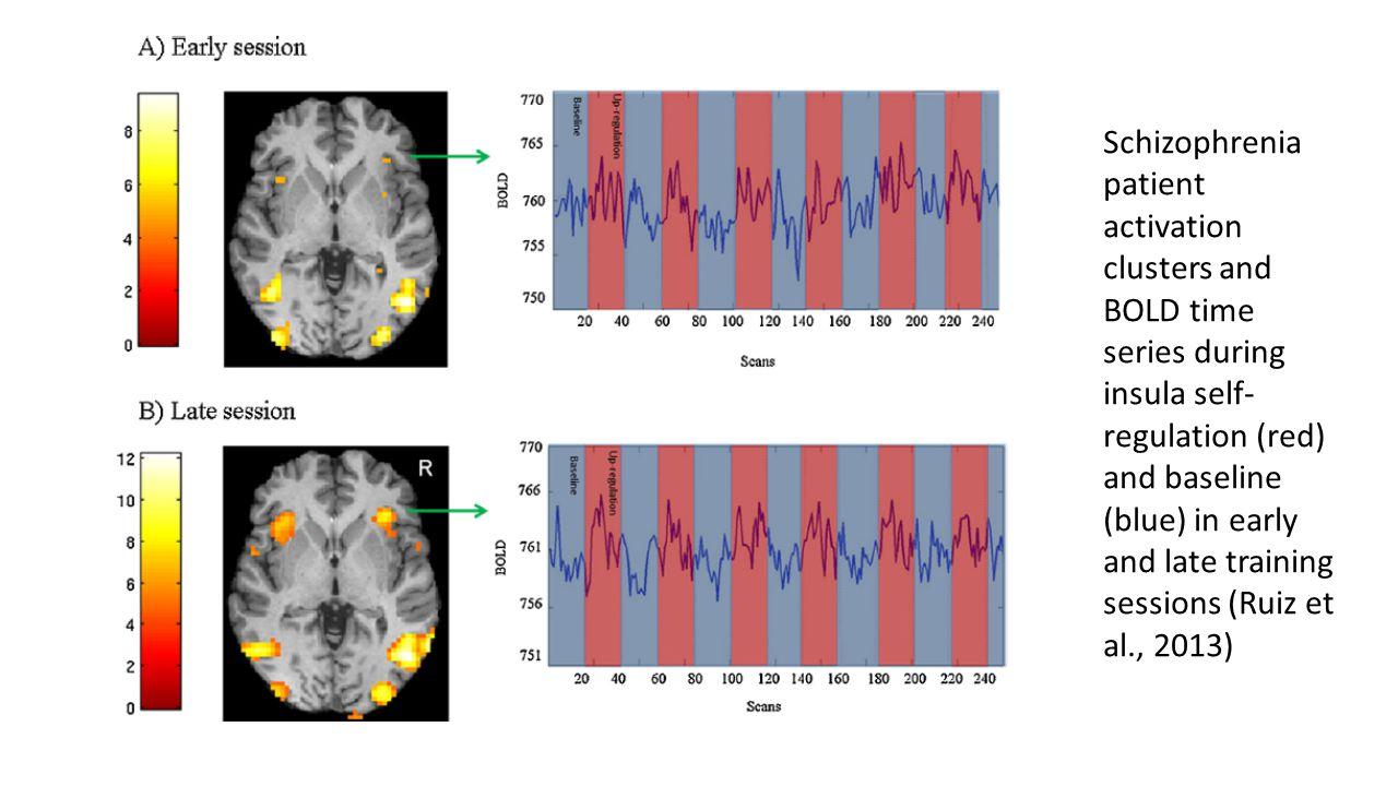 Ruiz et al.(2013) Changes observed as result of single ROI self-regulation training.