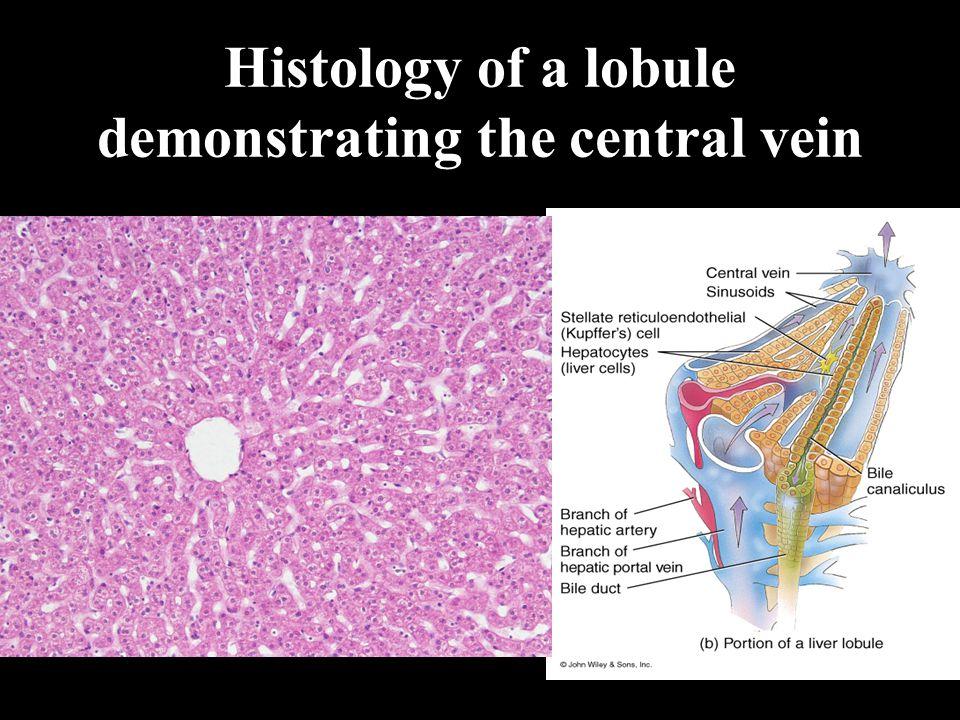 Histology of a lobule demonstrating the hepatic triad