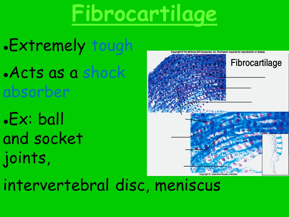 Fibrocartilage ● Extremely tough ● Acts as a shock absorber ● Ex: ball and socket joints, intervertebral disc, meniscus