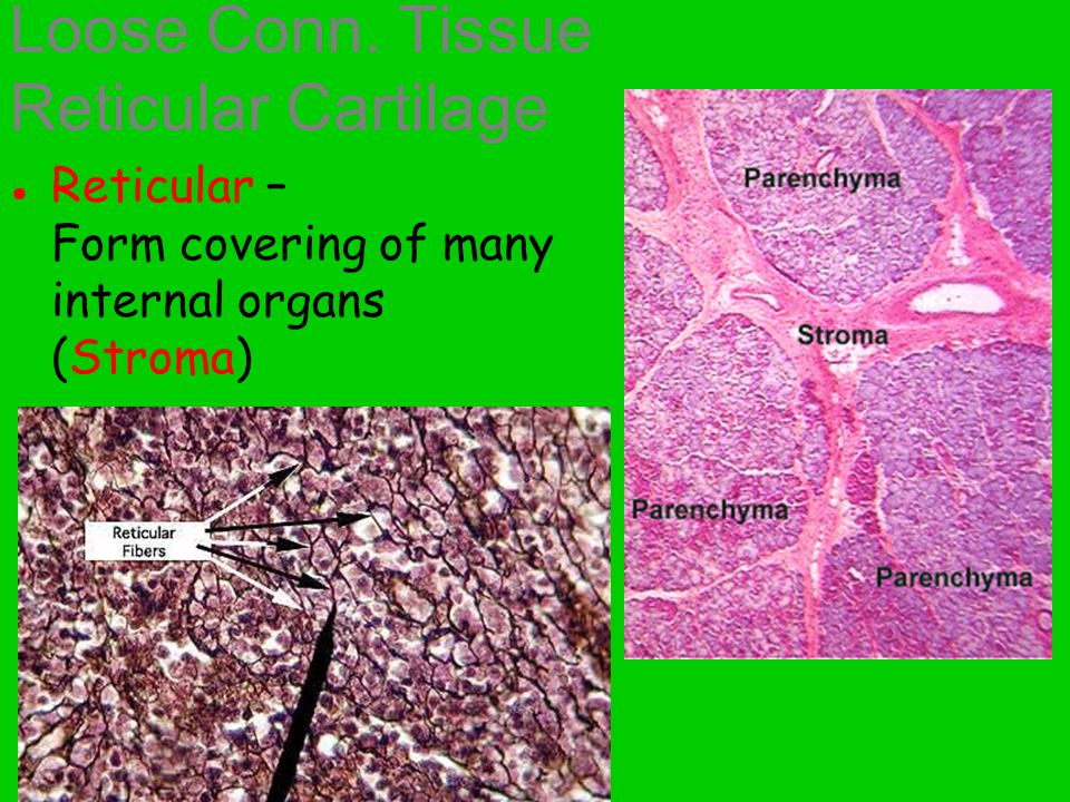 Loose Conn. Tissue Reticular Cartilage ● Reticular – Form covering of many internal organs (Stroma)