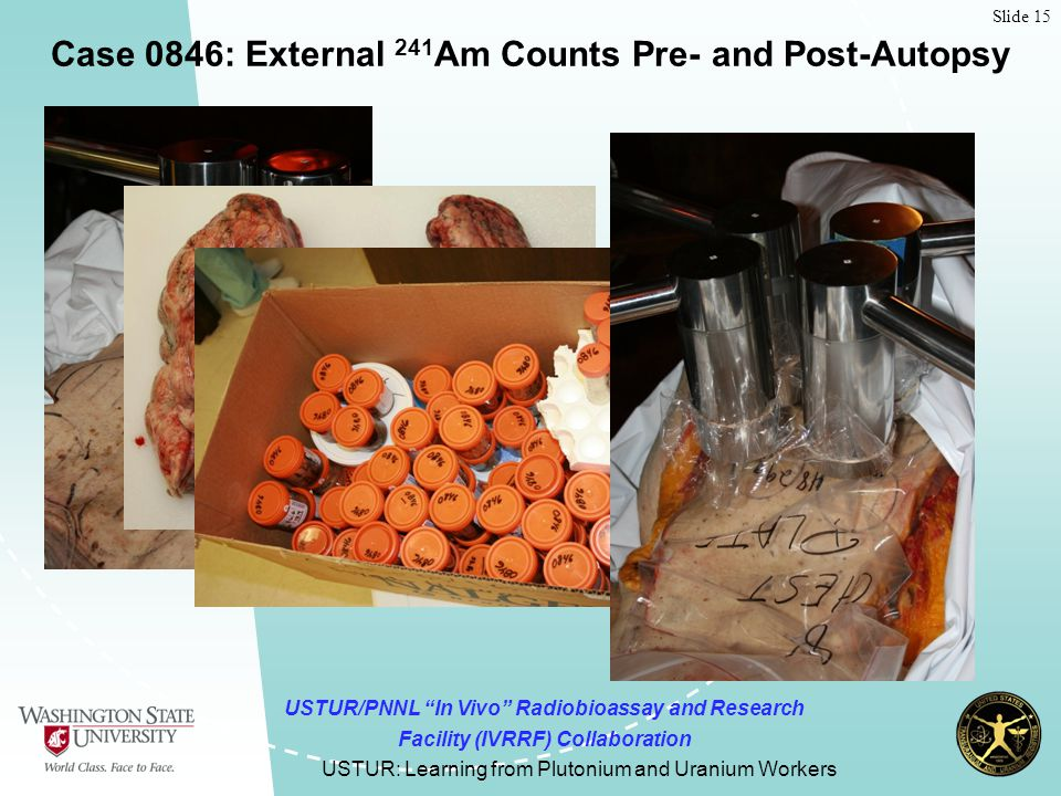 Slide 15 USTUR: Learning from Plutonium and Uranium Workers Case 0846: External 241 Am Counts Pre- and Post-Autopsy USTUR/PNNL In Vivo Radiobioassay and Research Facility (IVRRF) Collaboration
