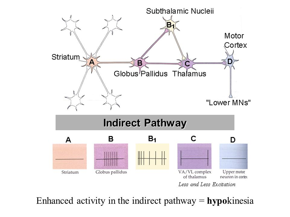 Enhanced activity in the indirect pathway = hypokinesia Indirect Pathway