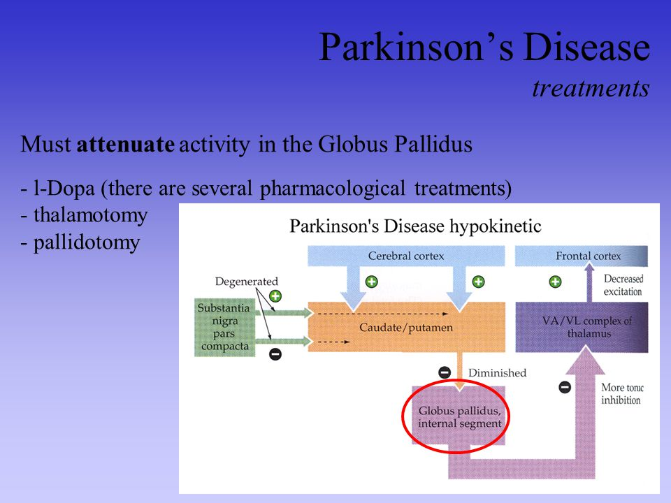 Parkinson's Disease treatments Must attenuate activity in the Globus Pallidus - l-Dopa (there are several pharmacological treatments) - thalamotomy -