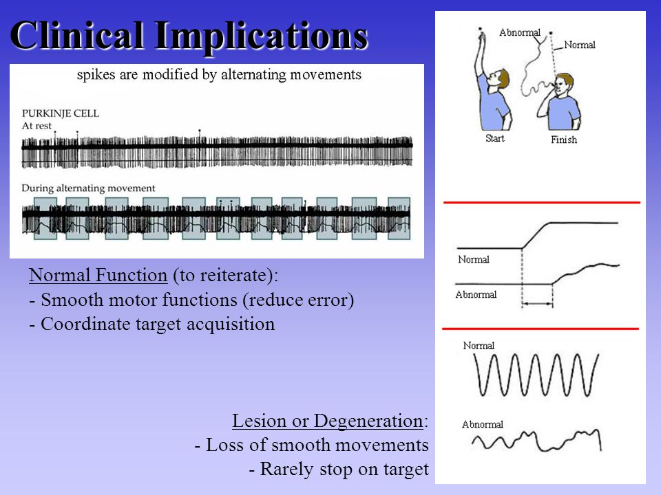 Clinical Implications Normal Function (to reiterate): - Smooth motor functions (reduce error) - Coordinate target acquisition Lesion or Degeneration: