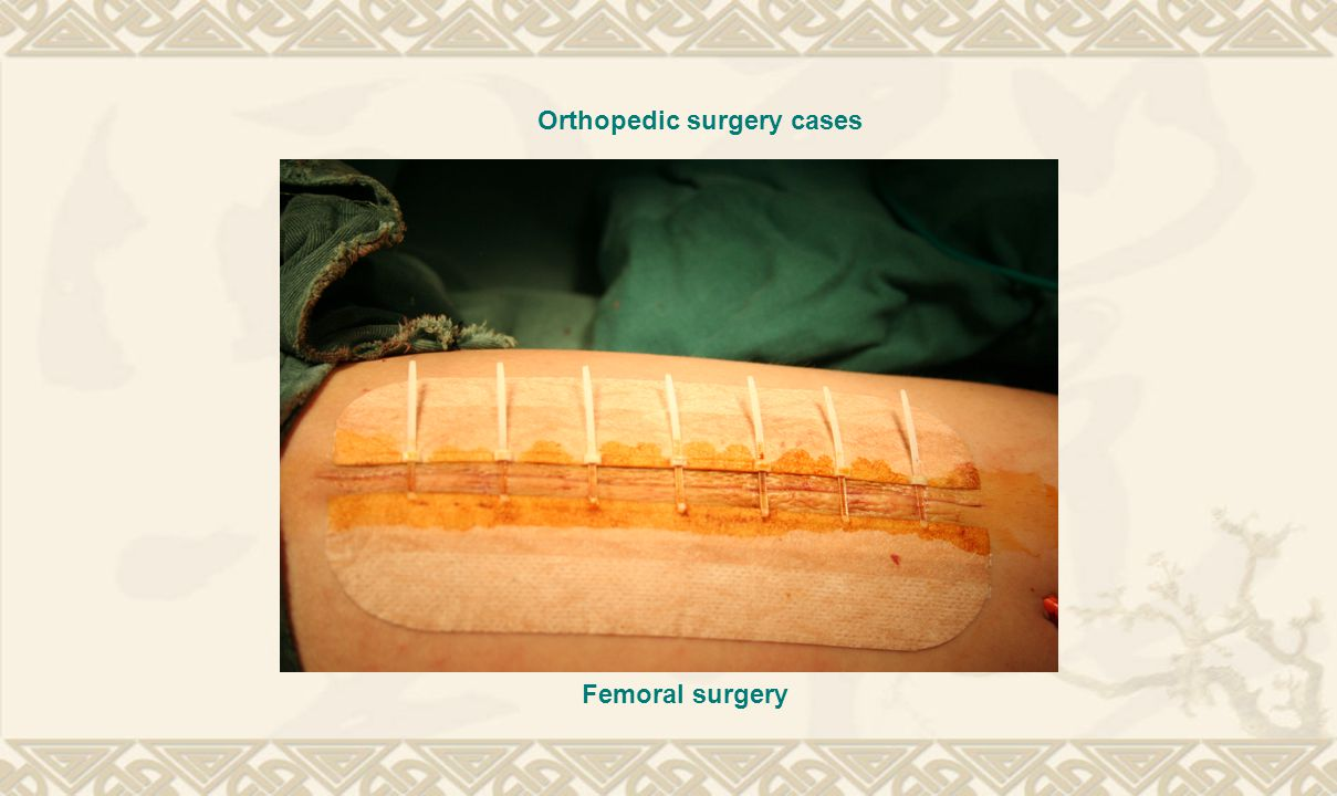 Orthopedic surgery cases Femoral surgery