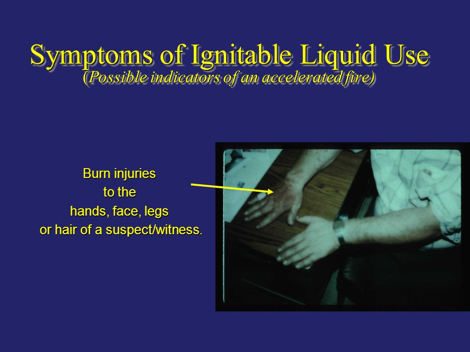Symptoms of Ignitable Liquid Use (Possible indicators of an accelerated fire) Burn injuries to the hands, face, legs or hair of a suspect/witness. or