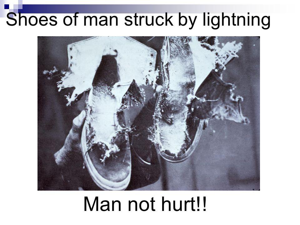 Shoes of man struck by lightning Man not hurt!!