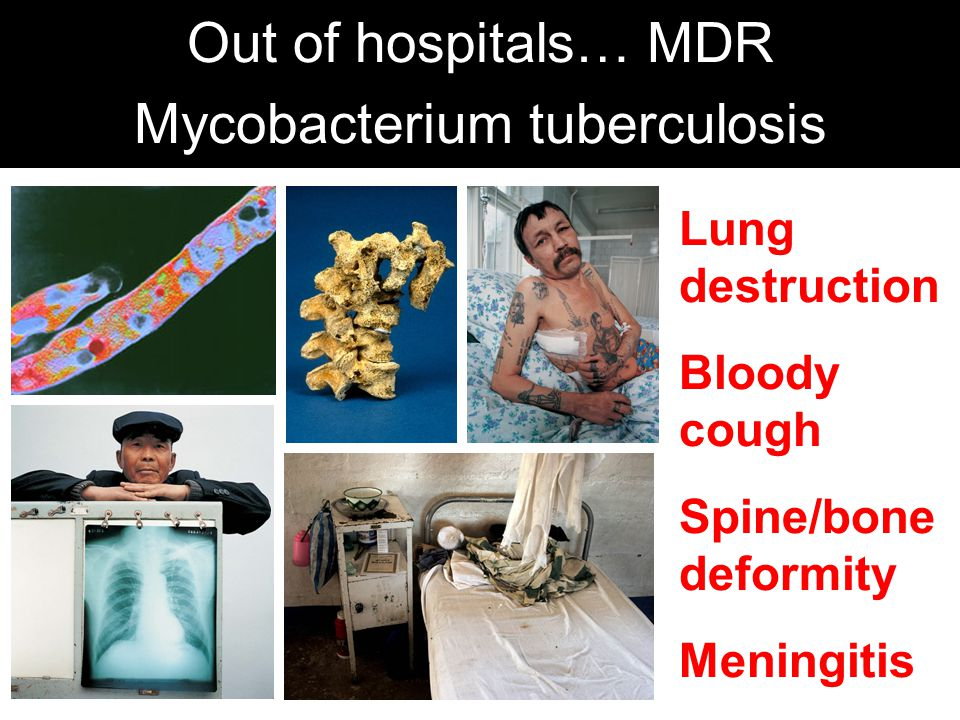 Out of hospitals… MDR Mycobacterium tuberculosis Lung destruction Bloody cough Spine/bone deformity Meningitis