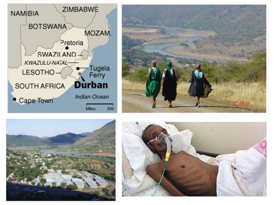 Rapid death of TB XDR patients at Tugela Ferry: 52/53 died, half within 16 days Days since sputum collected Proportion surviving