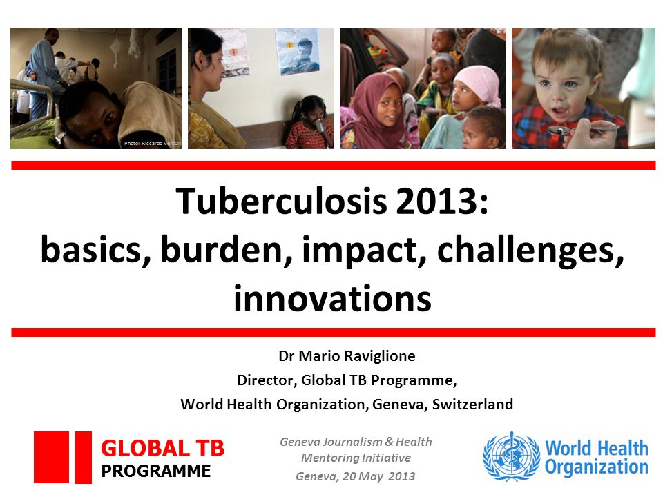 GLOBAL TB PROGRAMME Overview Basics Burden of TB, TB/HIV, MDR-TB Impact of interventions, and progress in TB care and control Vision beyond 2015 Innovations necessary towards elimination