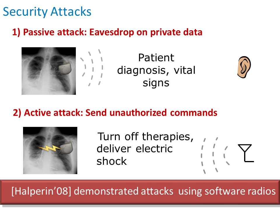 1) Passive attack: Eavesdrop on private data Patient diagnosis, vital signs 2) Active attack: Send unauthorized commands Turn off therapies, Security